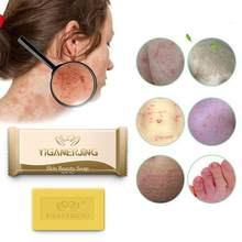 7g Sulfur soap Handmade No Stimulation Deep Cleaning Anti-mite Pimple Pore Acne Seborrhea Face Body Soap Shower Skin Care Tools(China)