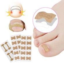 1 Набор вросший корректор для ногтей стикер лечение пароникья