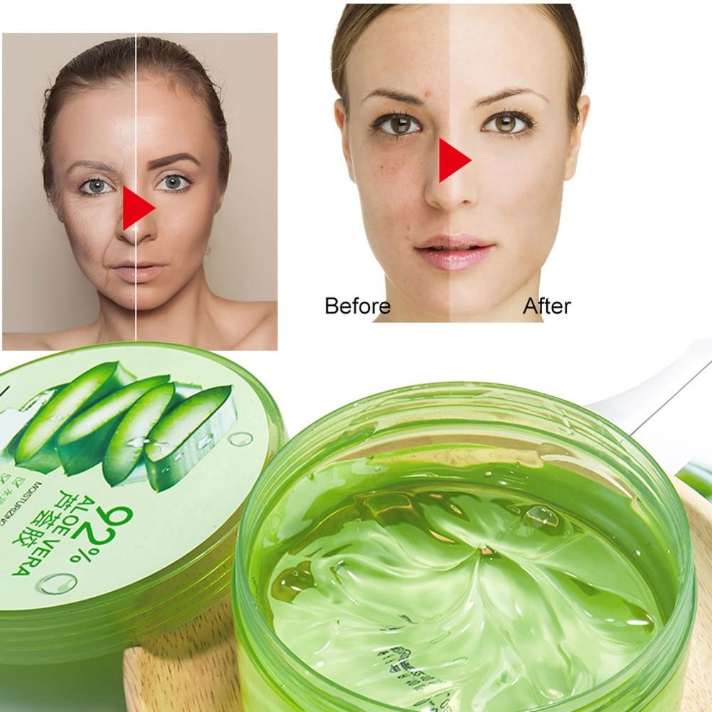 300g Aloe Face Moisturizing Gel 92%Natural Sunburnt Repairing Face Creams Treatment Gel Acne Soothing Cream Skin Care