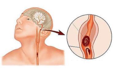 脑梗出现的原因 脑梗分为哪几种类型-养生法典