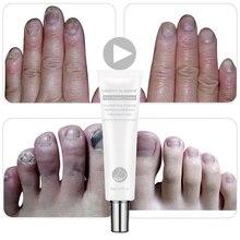 VIBRANT GLAMOUR Repair Cream Nail Anti Fungus Treatment 20ML Onychomycosis Removal Care