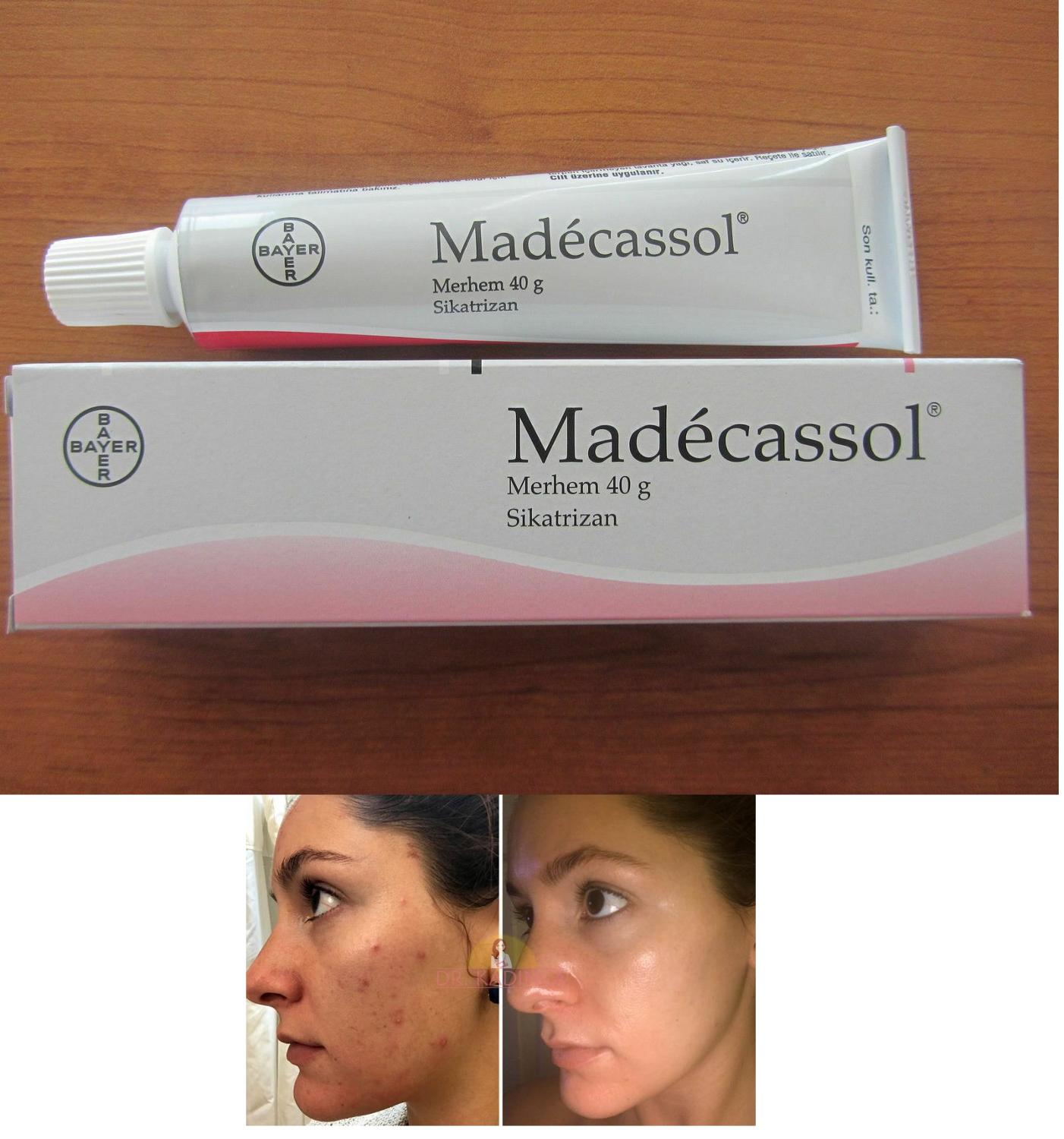 Madecassol ® 40 Gr Scar Injury Burns Acne Wrinkle -Centella Asiatica