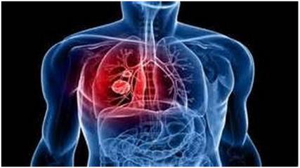 肺炎的食疗搭配方法 治疗肺炎的偏方-养生法典