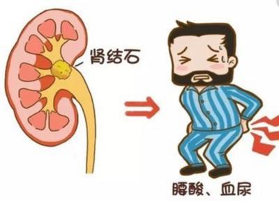 肾结石疼痛难忍这个的饮食原则有助于排石-养生法典