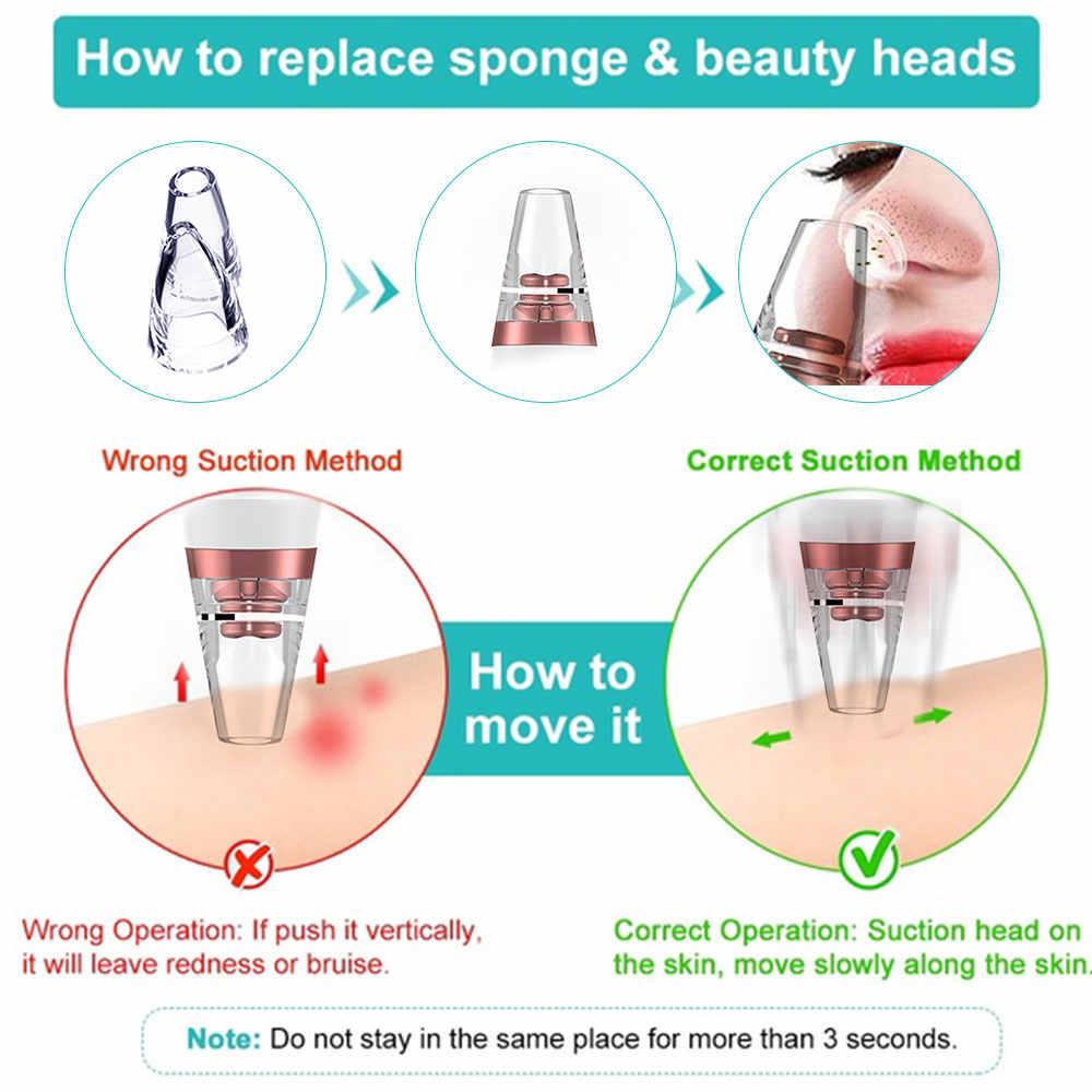 Jerawat Pori Cleaner Komedo Remover Vacuum Electric Hidung Wajah Dalam Pembersihan Kulit Perawatan Mesin Kecantikan Jerawat Menghapus Dropshipping
