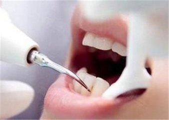 牙结石是什么 牙结石是怎样形成的-养生法典