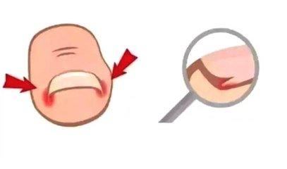 灰指甲如何预防传染 灰指甲的传染途径-养生法典