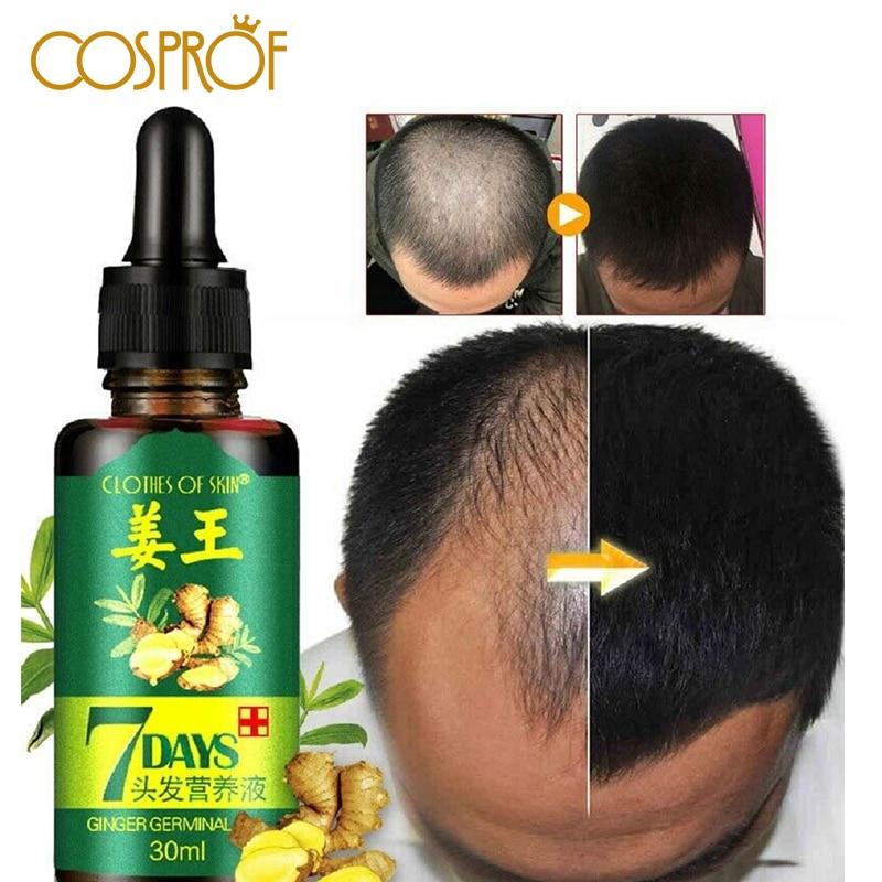Mascarilla de cabello Esencia de aceite 2019 pérdida de cabello líquido denso espeso cabello apoya crecimiento de cabello saludable mujeres hombres Reparación de cabello dañado Productos anticaída del cabello    - AliExpress