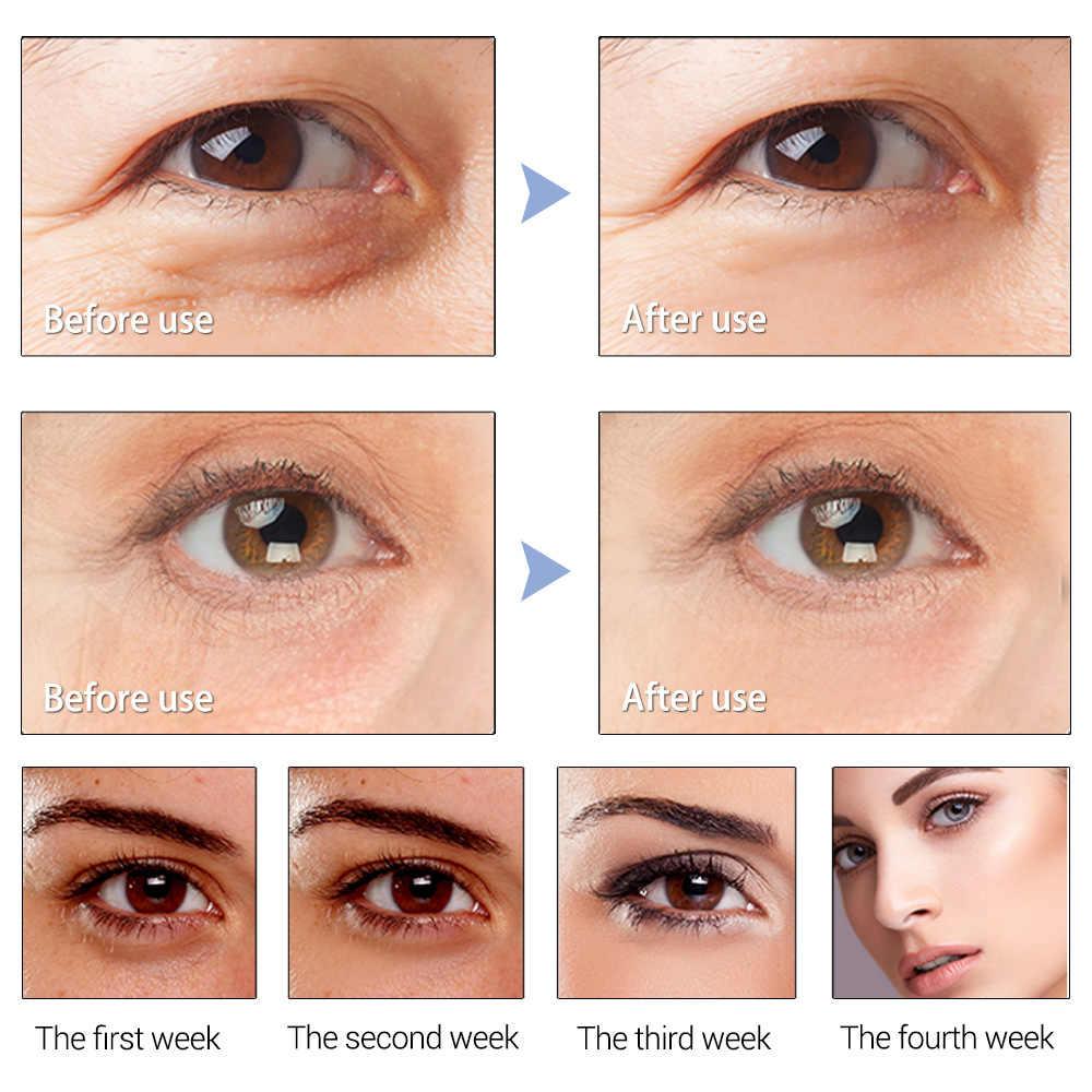 LANBENA חילזון תיקון סרום עיניים כדור רולר להסיר כהה מעגל לחות אנטי אייג 'ינג העין תיקון מעלית הלבנת מיצוק עור טיפול