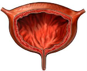 膀胱的构成以及一些膀胱疾病的介绍-养生法典