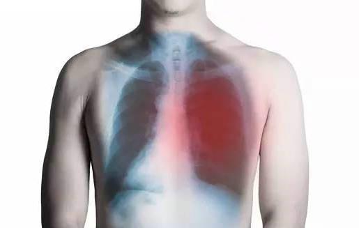 肺癌患者如何通过气功进行缓解或者调理疾病-养生法典