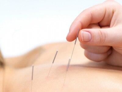 用针灸方法治疗腰间盘突出的情况-养生法典
