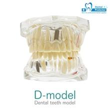 Removable Teaching-Model Tooth-Pathological Dental Disease Transparent