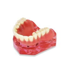 Dental-Model Lower-Teeth-Model Implants Overdenture Demo with Removable Maxillary Mandibular