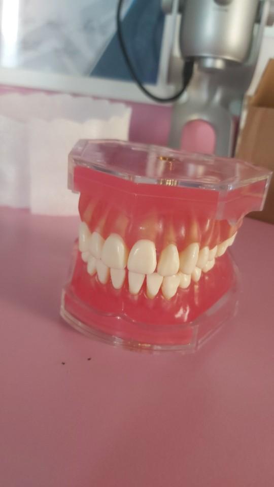 -- removíveis estudo dental