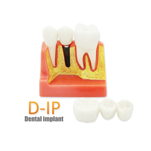 Removable Teaching-Model Tooth-Pathological Dental Transparent