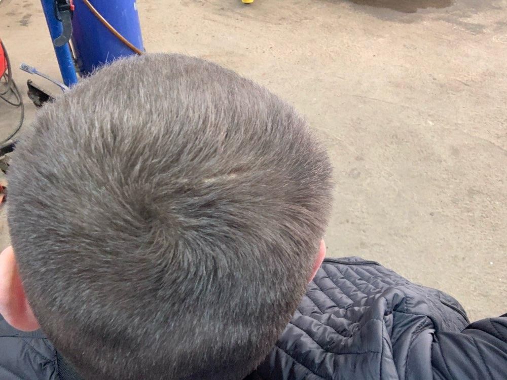 Hair Thickening Fibers Powder photo review