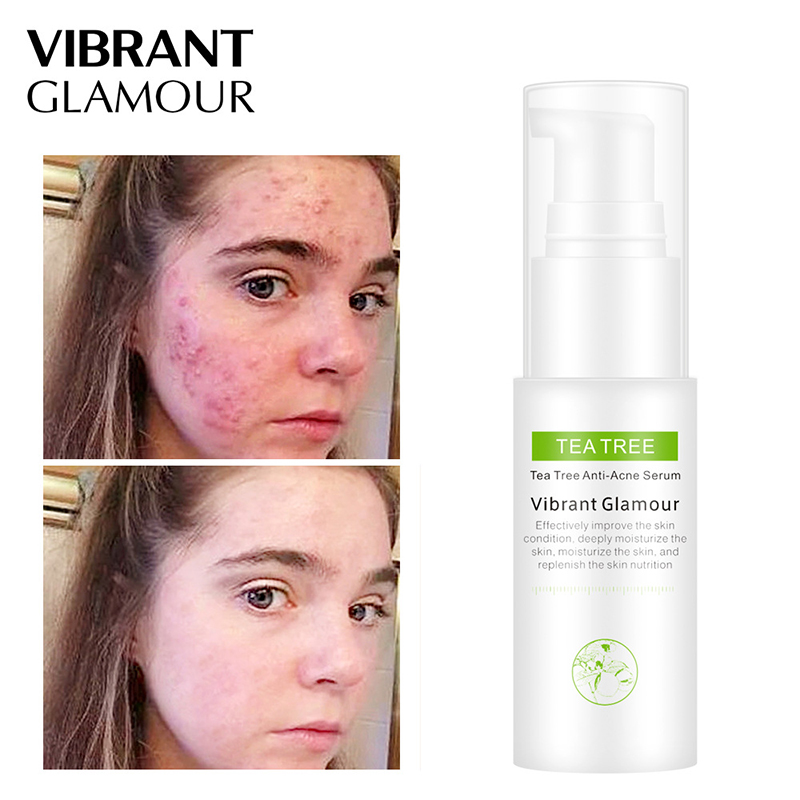Tea Tree Oil Acne Treatment Face Serum Anti Acne Scar Removal Shrink Pores Cream Whitening Anti-Aging Skin Care