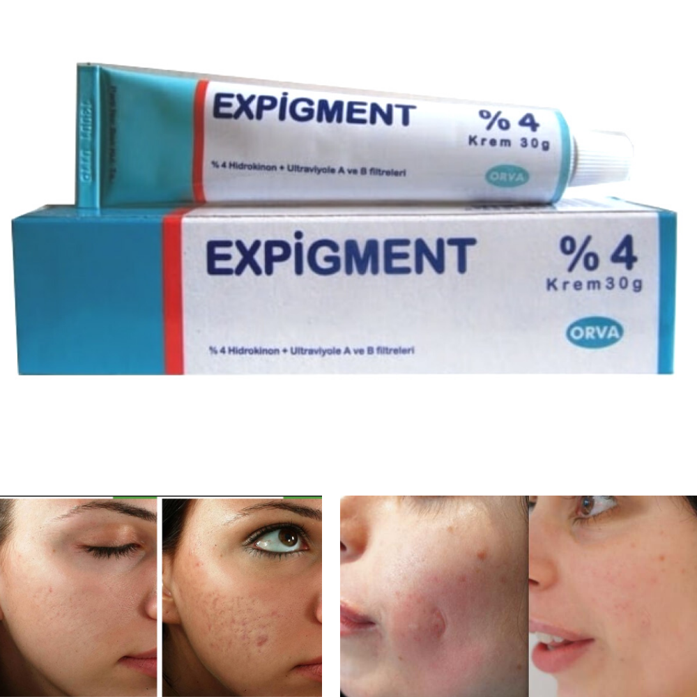 Expigment 30 G Cream Magical Effect Centella Asiatica Cell Regenerator Acne Injury Skin Resurfacing Freckle Nipple Crack