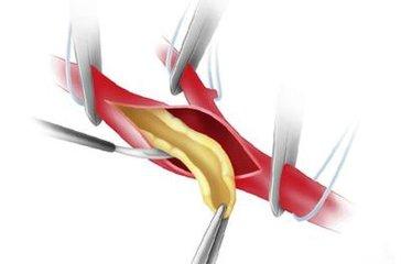 颈动脉硬化应该看什么科 颈动脉硬化的症状有哪些-养生法典