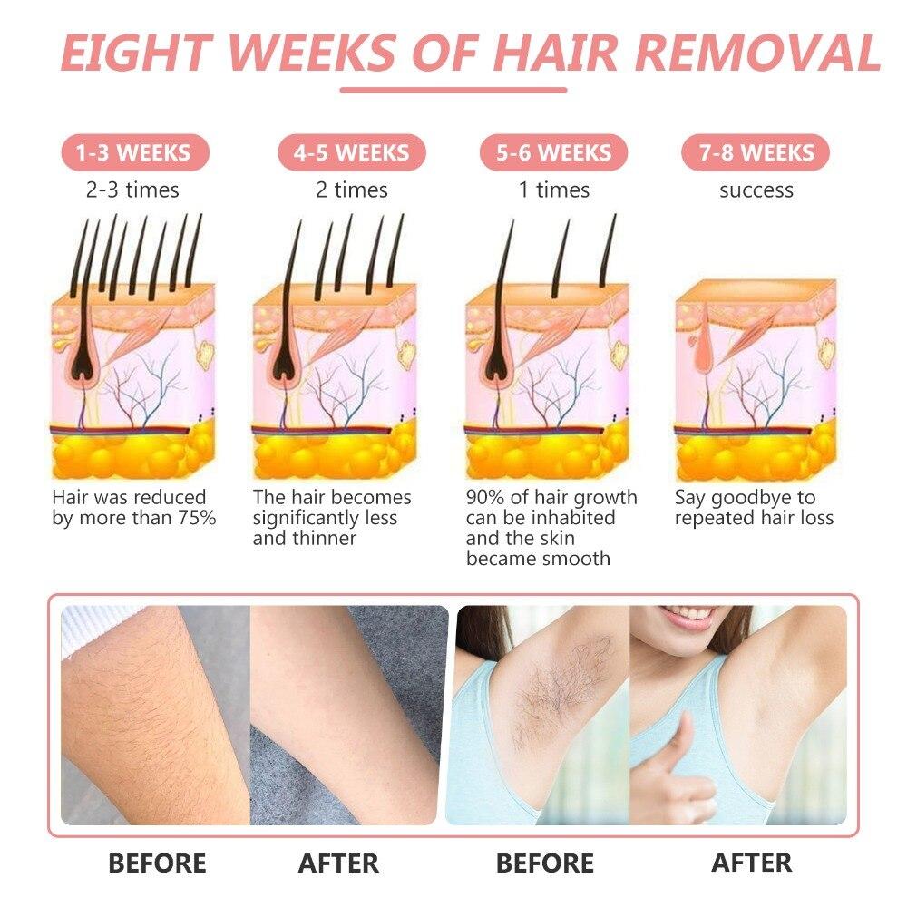 999999 flashes remoção do cabelo a laser