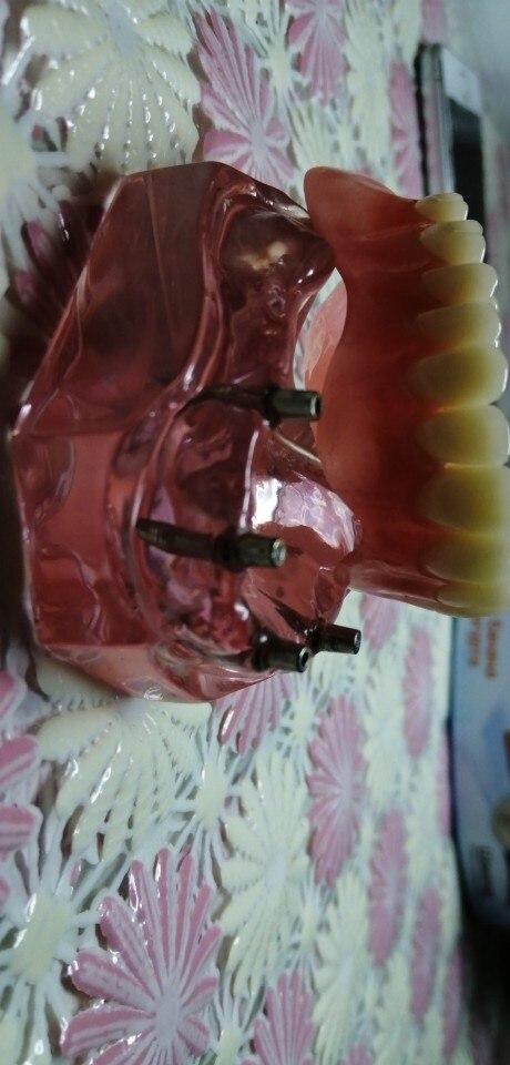 -- Dentes Dentes Mandibulares