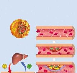 血脂四项查的是哪四项 血脂四项检查意义-养生法典