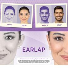 Beauty Tapes EARLAP  Cauliflower Protruding Ear concealer Corrector