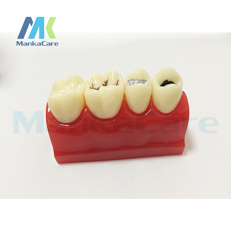 Sealantant Demonstration Imported Resin Teeth/Sealant And Inlay Demonstration Model In Comparison With Symmetrical Caries