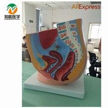 Women Sagittal Anatomy BIX-A1065  MQ84