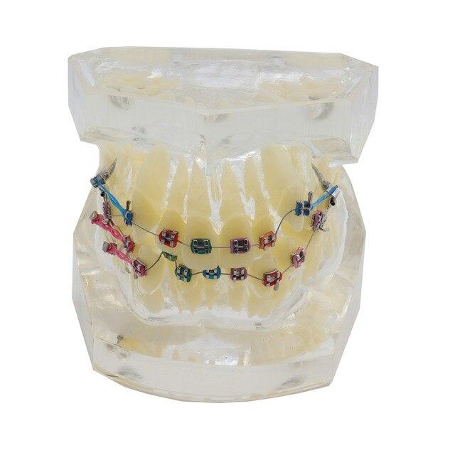 שיניים סטנדרטי אורתודונטי שיניים דגם עם סוגריים & Buccal צינורות & יגטורה חוט אורתודונטי טיפול שקוף