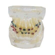 Modelo padrão dental dos dentes ortodônticos com suportes & tubos bucais & tratamento ortodôntico do fio da ligadura transparente
