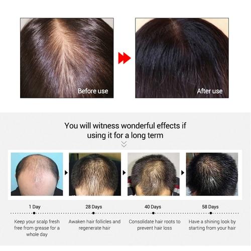 LANBENA Hair Faster Growth Essence Hair Growth Beauty Essential Oil Liquid Treatment Preventing Hair Loss Hair Care Andrea 20ml Karachi