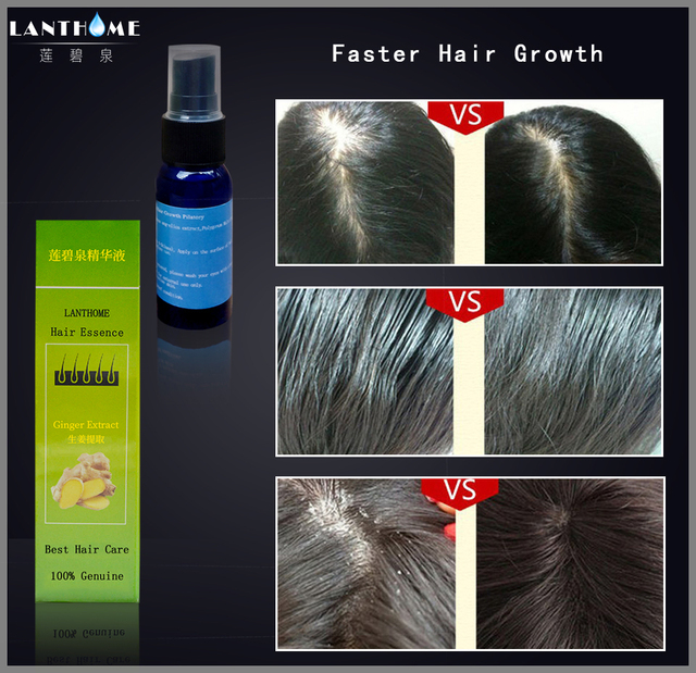 Hair Regrowth Treatment Women & Men Anti Hair Loss