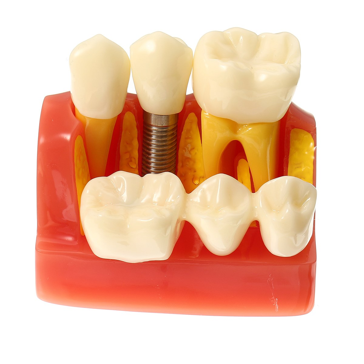 New 4 Times Dental Implant Disease Teeth Model With Restoration Bridge Crown For Medical Science Teaching Demonstration 2017 New soarday dental endodontic restoration model teaching communication model pathological display dental caries
