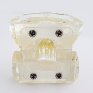 Image 3 - Dental Standard Orthodontic Teeth Model with Brackets & Buccal Tubes & Ligature Wire Orthodontic Treatment Transparent