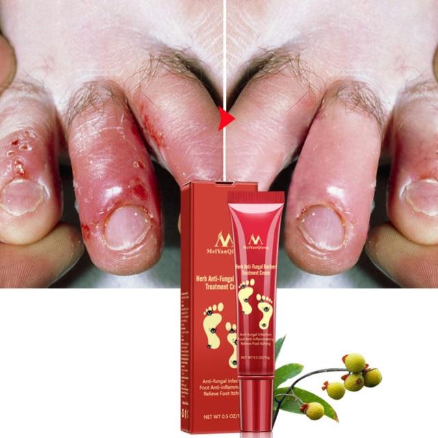 MeiYanQiong 15g Heel Cream Repair Anti Crack Whitening Cream Foot Peeling Cracked Hands Feet Dry Skin Moisturizing Care TSLM2 5
