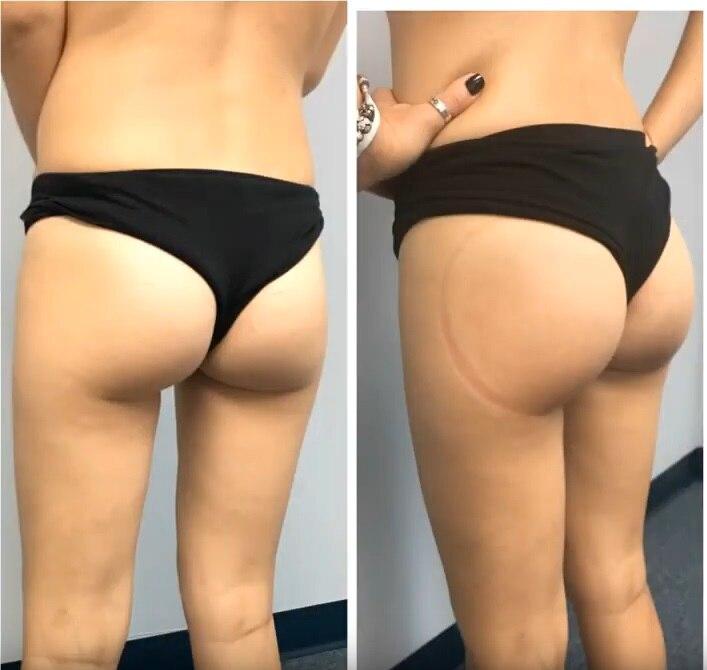 butt lift2