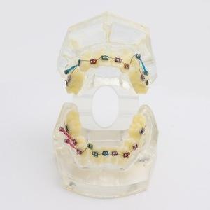 Image 5 - שיניים סטנדרטי אורתודונטי שיניים דגם עם סוגריים & Buccal צינורות & יגטורה חוט אורתודונטי טיפול שקוף