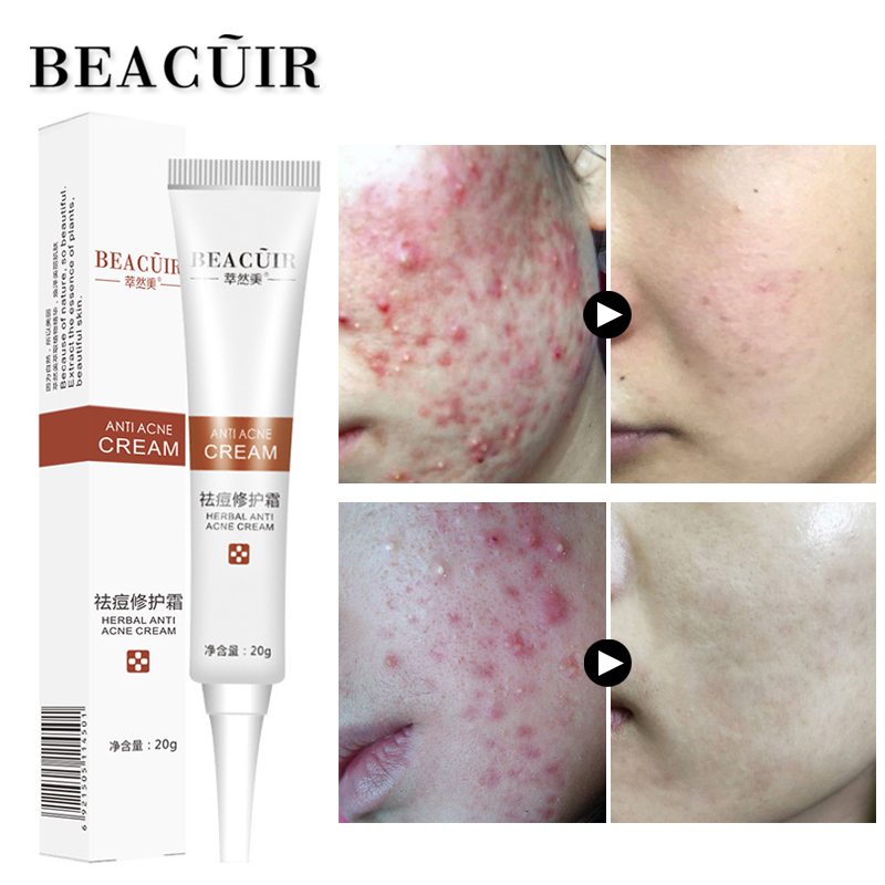 BEACUIR Rejuvenation Acne Cream Anti Acne Treatment Scar Removal Whitening Moisturizing Shrink Pores Beauty For Face Skin 20g cosrx centella blemish cream 30ml acne scar remove skin care acne treatment shrink pores moisturizing face cream korea cosmetic