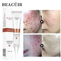 BEACUIR Rejuvenation Aloe Vera Acne Beauty Cream Anti-Acne Treatment Face Cream Scar Removal Whitening Moisturizing Shrink Pores Facial Self Tanners & Bronzers