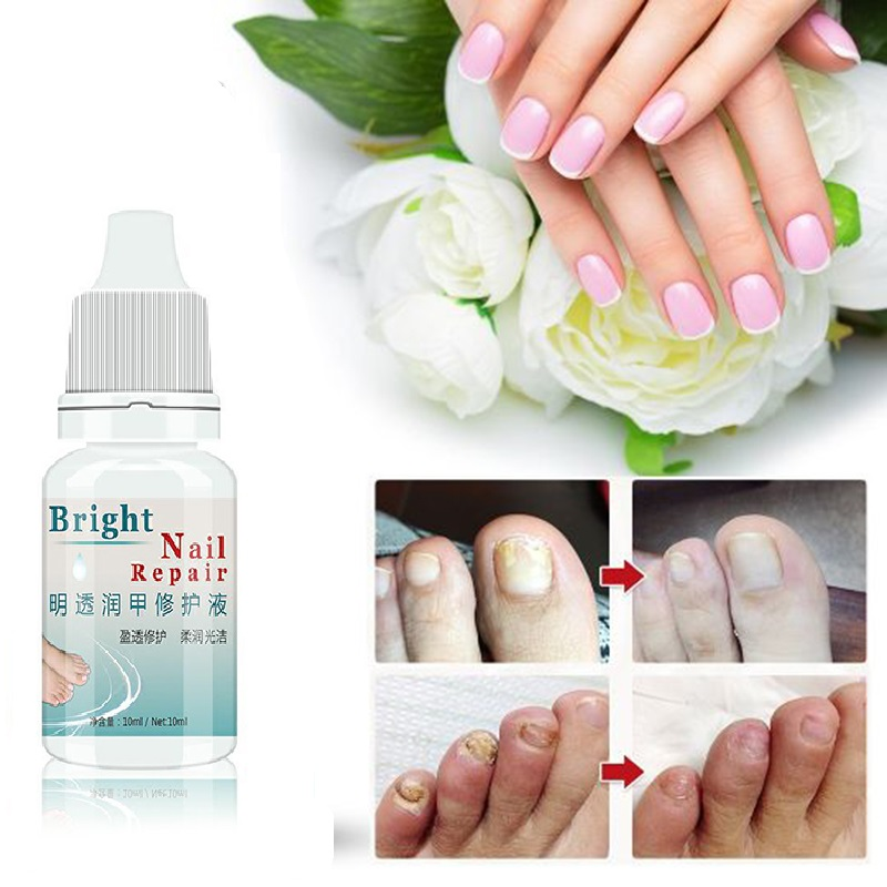 10ML Fungal Nail Treatment Essence Nail Foot Whitening Toe Nail Fungus Removal Feet Care Nail Gel For Onychomycosis  TSLM2
