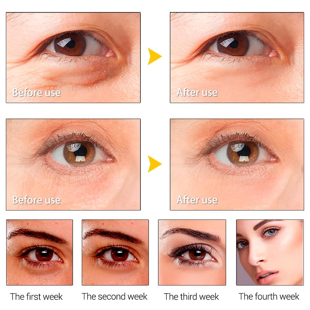 Skin Care Anti Wrinkle Puffiness Serum Remover Dark Circles Hyaluronic Acid activating Eye Serum Essence Moisturizer BY LANBENA