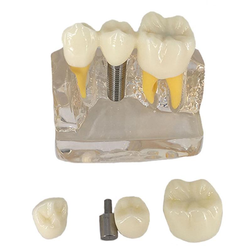 4 Times Dental Implant Disease Teeth Model With Porcelain Restoration Bridge Dentist Demo For Medical Science Teaching Study soarday dental endodontic restoration model teaching communication model pathological display dental caries