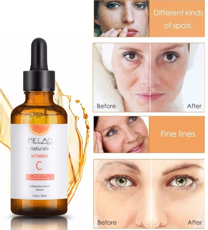 Professional Vitamin C Face Serum 30ML 20% Natural Organic Hyaluronic Acid Serum Suitable for Skin Care TSLM2Professional Vitamin C Face Serum 30ML 20% Natural Organic Hyaluronic Acid Serum Suitable for Skin Care TSLM2