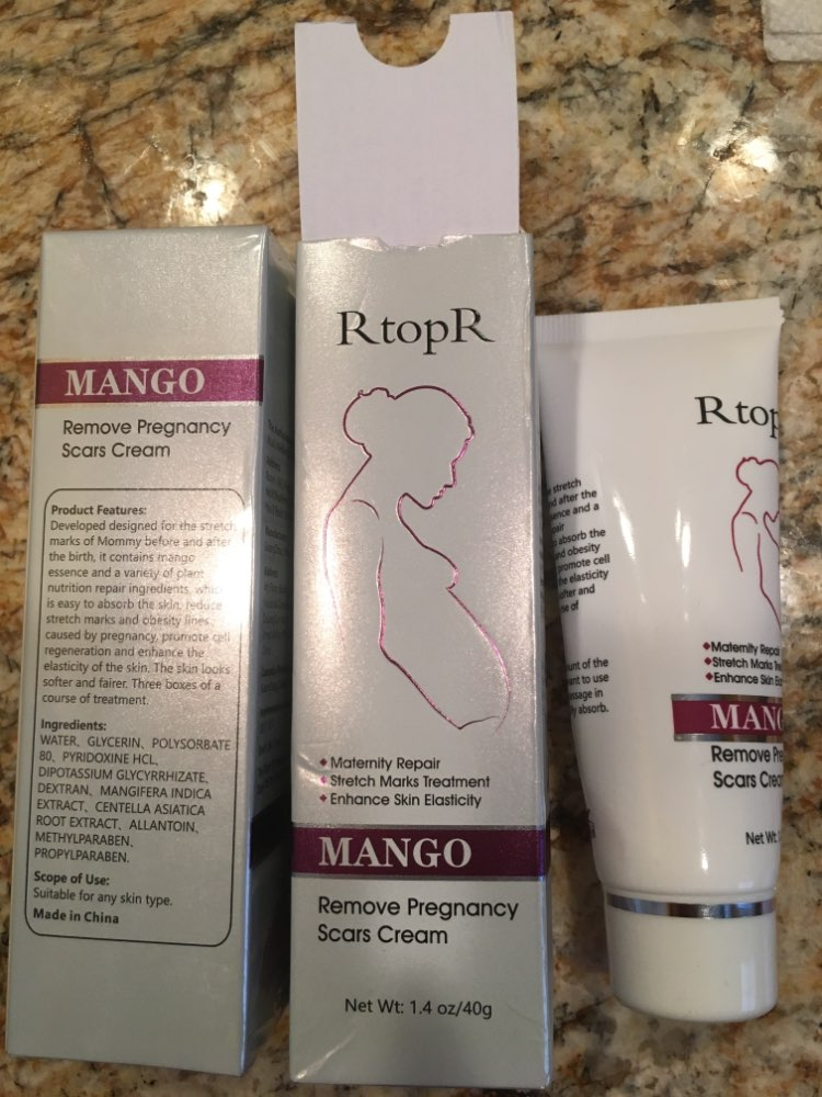 Mango Stretch Mark Skin Repair Cream Tigershore