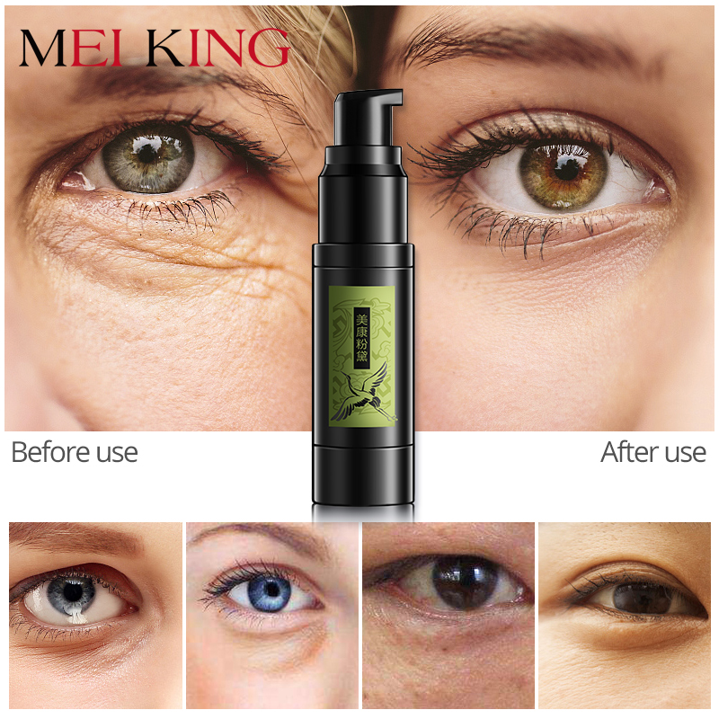 MEIKING Hyaluronic Acid Collagen Crystal Gel Eye Serum Anti-Wrinkle Remover Dark Circles Eye Essence Against Puffiness Whitening mabox natural eye gel for appearance of dark circles puffiness wrinkles and bags for under and around eyes eye gel essence gel