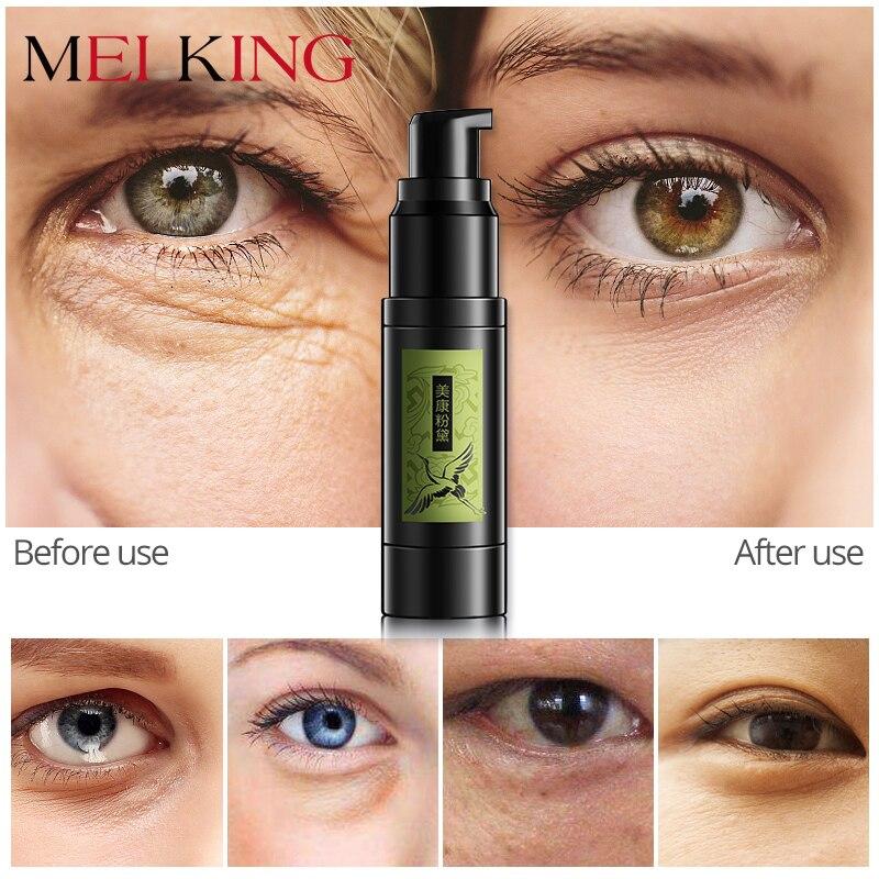 MEIKING Hyaluronsäure Collagen Kristall Gel Eye Serum Anti-Falten-entferner Augenringe Auge Essenz Gegen Schwellungen Bleaching
