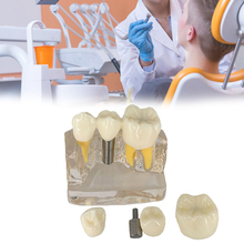 4 Times Clear Dental Implant Disease Teeth Model With Porcelain Restoration Bridge Dentist Demo For Medical Science Teaching