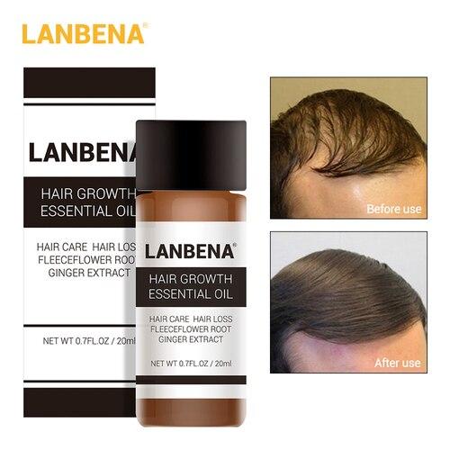 LANBENA Hair Faster Growth Essence Hair Growth Beauty Essential Oil Liquid Treatment Preventing Hair Loss Hair Care Andrea 20ml Lahore